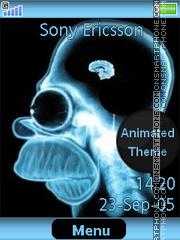 Homers X-Ray es el tema de pantalla