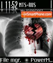 Broken Heart 01 es el tema de pantalla